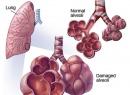 Аллергический альвеолит