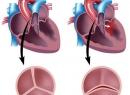 Двустворчатый аортальный клапан: причины, симптомы, лечение
