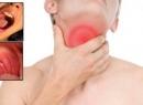 Ларингит заразен или нет? Ответ терапевта