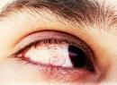 Вспышки в глазах: причины, симптомы