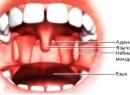 Воспалился небный язычок: лечение