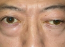 Миастения Гравис-симптомы, диагностика, лечение