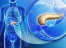 Можно ли полностью вылечить панкреатит? Эффективные способы и особенности лечения