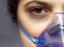 Бронхиальной астмы этиология и патогенез