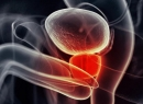 Простата увеличена: причины и лечение