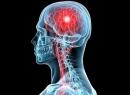 Предвестники инсульта: как не пропустить приближение беды?
