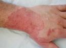 Микозы кожи: лечение препаратами и народными средствами, симптомы