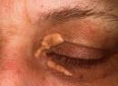 Причины, симптомы, профилактика и особенности лечения ксантелазмы век