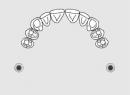 Дефекты зубных рядов: классификация по Кеннеди