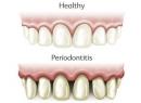 Что такое периодонтит? Классификация и лечение