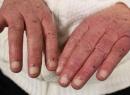 Симптомы инфекционного эндокардита: узелки Ослера