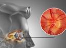 Народные методы лечения неврита зрительного нерва