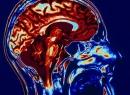 МРТ головного мозга: как проходит процедура? Как подготовиться к МРТ головного мозга?