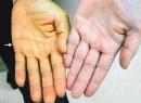 Описание обтурационной желтухи: причины, симптомы и особенности лечения
