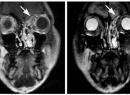 МРТ пазух носа: где сделать, что показывает? Томография пазух носа
