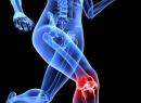 Воспаление связки: симптомы и лечение