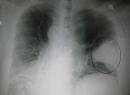 Гипостатическая пневмония: причины и диагностика