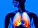 Массаж при пневмонии: техника выполнения. Массаж с эфирными маслами