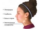 Инфекционный мононуклеоз - симптомы заболевания у детей и взрослых, его особенности и лечение