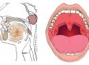 Рак горла гортани - симптомы и стадии заболевания, методы лечения рака гортани
