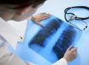 Кашель при туберкулезе: особенности и симптомы