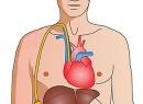 Асцит при циррозе печени. Лечение: препараты, народные средства. Диета, прогноз
