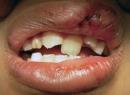 Вывих зубов: виды, лечение, фото