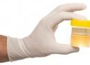 Глюкозурия - это Глюкозурия: описание, причины, симптомы, диагностика и особенности лечения