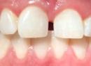Прогнатия - это деформация челюсти: диагностика и лечение