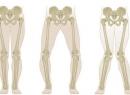 Вальгусная деформация коленных суставов: фото, причины, лечение