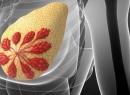 Рентген при грудном вскармливании. Влияние рентгена на грудное молоко. Чем опасен рентген? Рентгенологическое исследование