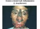 Кожный лейшманиоз
