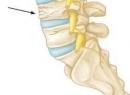 Компрессионный перелом позвоночника у ребенка: симптомы, лечение