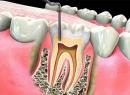 Пломбирование каналов зуба: методы и материалы