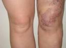 Клиппеля-Треноне синдром: фото, симптомы, лечение