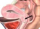 Рубцовая деформация шейки матки: причины и лечение. Шейка матки после родов