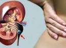 Лечение мочекаменной болезни народными средствами
