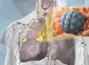 Карцинома легких: симптомы, стадии, лечение, прогноз