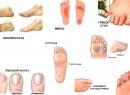 Грибок стопы - симптомы поражения стоп грибковой инфекцией виды грибка и его лечение