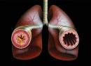 Бронхиальная астма: причины возникновения и методы лечения