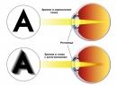 Астигматизм - симптомы патологии рефракции глаза, разновидности, особенности диагностики и лечения астигмат