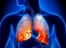Эозинофильная пневмония: описание, симптомы, причины и особенности лечения