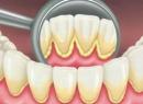 Зубные отложения: виды, причины и способы удаления