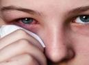 Блефарит: лечение в домашних условиях. Виды и симптомы блефарита
