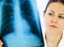 Туберкулез и беременность: беременность после туберкулеза, туберкулез во время беременности, влияние туберкулеза на беременность