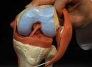 Лигаментоз коленного сустава: что это такое, причины появления и лечение