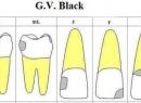 Классификация кариозных полостей по Блэку: описание, степень, класс и лечение