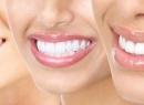 Профилактическая стоматология для предупреждения болезней зубов и десен