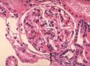 Болезнь Берже (IgA-нефропатия): причины, лечение