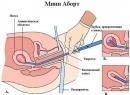Вакуумное прерывание беременности: сроки и отзывы